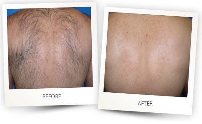 Laser Hair Removal by Kikis Body Care